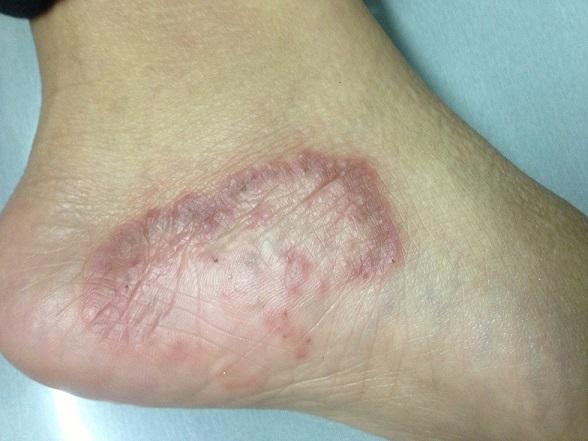 El dolor cerca de la uña del pulgar del pie el tratamiento